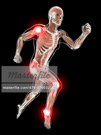 Painful joints, computer artwork. Stock Photo - Premium Royalty-Free, Image code: 679-07603216