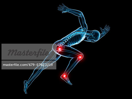 Painful joints, computer artwork. Stock Photo - Premium Royalty-Free, Image code: 679-07603219