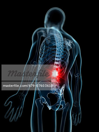 Back pain, computer artwork. Stock Photo - Premium Royalty-Free, Image code: 679-07603610