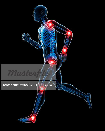 Painful joints, computer artwork. Stock Photo - Premium Royalty-Free, Image code: 679-07604314