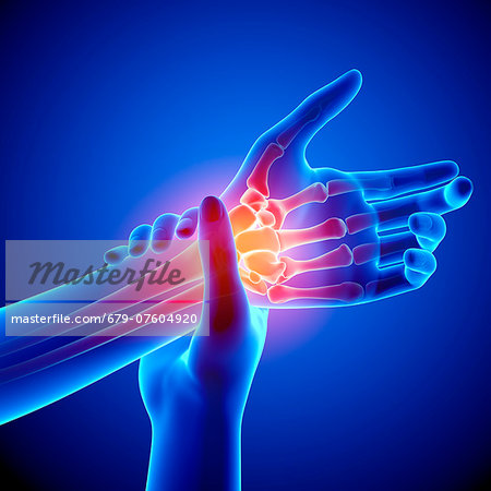 Wrist pain, computer artwork. Stock Photo - Premium Royalty-Free, Image code: 679-07604920