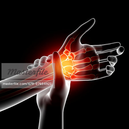 Wrist pain, computer artwork. Stock Photo - Premium Royalty-Free, Image code: 679-07604921