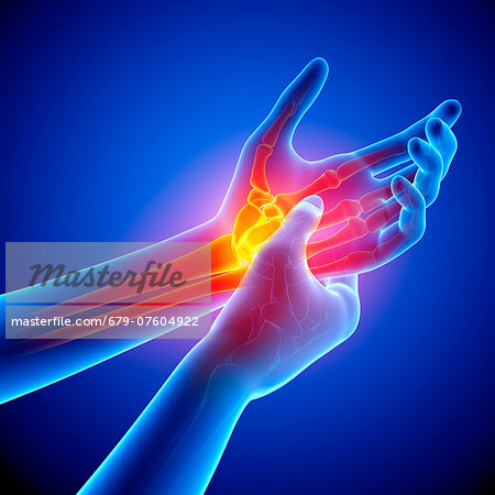 Wrist pain, computer artwork. Stock Photo - Premium Royalty-Free, Image code: 679-07604922