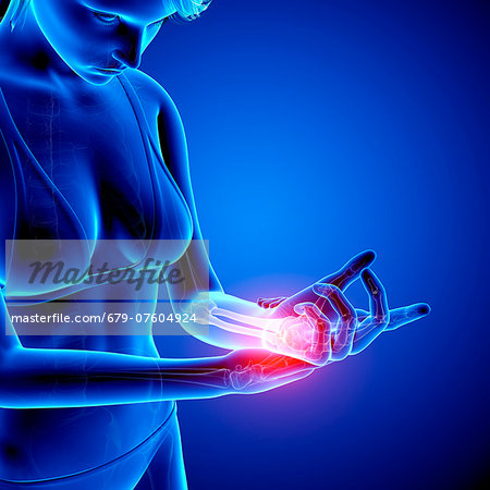 Wrist pain, computer artwork. Stock Photo - Premium Royalty-Free, Image code: 679-07604924