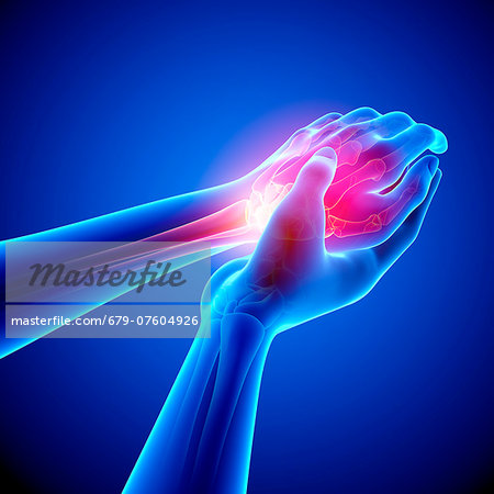 Wrist pain, computer artwork. Stock Photo - Premium Royalty-Free, Image code: 679-07604926