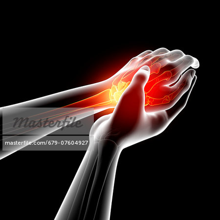 Wrist pain, computer artwork. Stock Photo - Premium Royalty-Free, Image code: 679-07604927