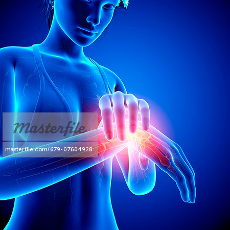Wrist pain, computer artwork. Stock Photo - Premium Royalty-Free, Image code: 679-07604928