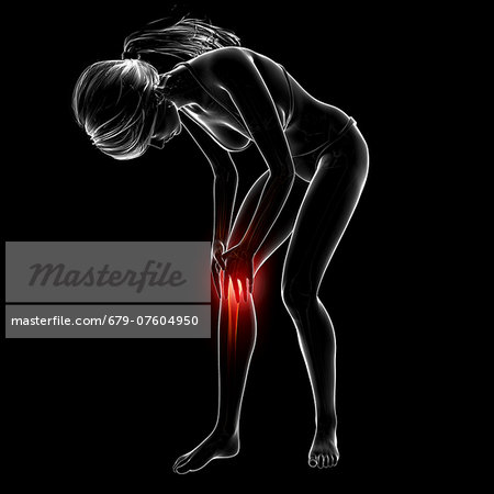 Knee pain, computer artwork. Stock Photo - Premium Royalty-Free, Image code: 679-07604950
