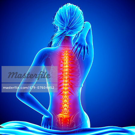 Back pain, computer artwork. Stock Photo - Premium Royalty-Free, Image code: 679-07604952