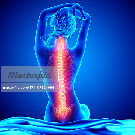 Back pain, computer artwork. Stock Photo - Premium Royalty-Free, Image code: 679-07604954