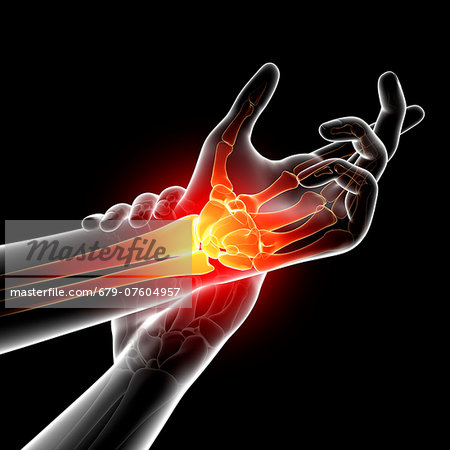 Wrist pain, computer artwork. Stock Photo - Premium Royalty-Free, Image code: 679-07604957