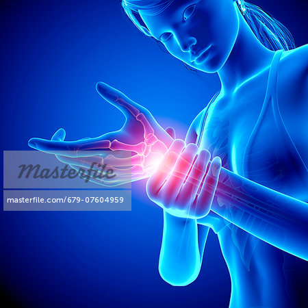 Wrist pain, computer artwork. Stock Photo - Premium Royalty-Free, Image code: 679-07604959