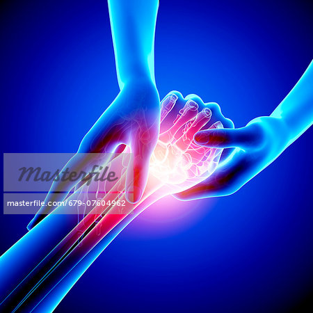 Wrist pain, computer artwork. Stock Photo - Premium Royalty-Free, Image code: 679-07604962