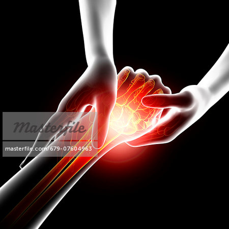 Wrist pain, computer artwork. Stock Photo - Premium Royalty-Free, Image code: 679-07604963