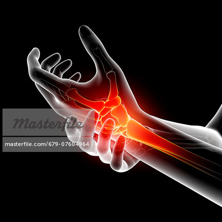 Wrist pain, computer artwork. Stock Photo - Premium Royalty-Free, Image code: 679-07604964