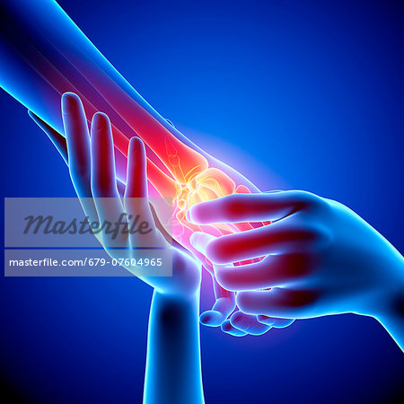 Wrist pain, computer artwork. Stock Photo - Premium Royalty-Free, Image code: 679-07604965