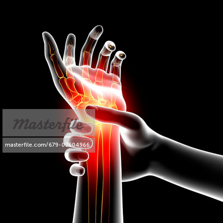 Wrist pain, computer artwork. Stock Photo - Premium Royalty-Free, Image code: 679-07604966