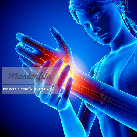 Wrist pain, computer artwork. Stock Photo - Premium Royalty-Free, Image code: 679-07604967