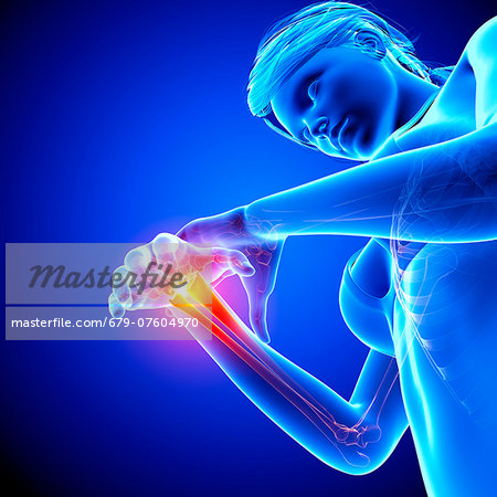 Wrist pain, computer artwork. Stock Photo - Premium Royalty-Free, Image code: 679-07604970