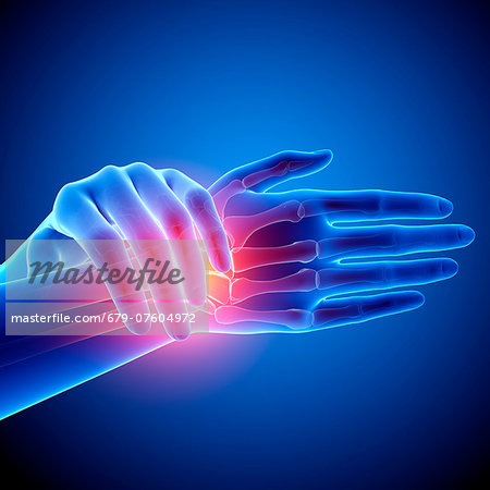Wrist pain, computer artwork. Stock Photo - Premium Royalty-Free, Image code: 679-07604972