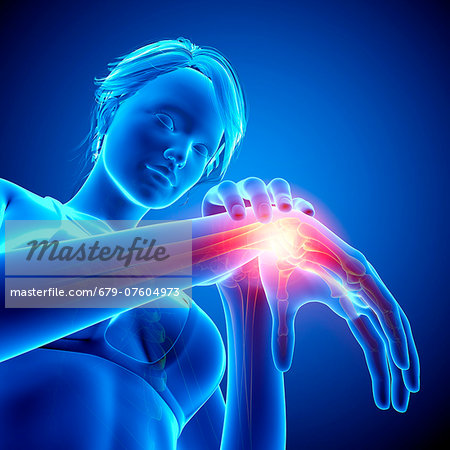 Wrist pain, computer artwork. Stock Photo - Premium Royalty-Free, Image code: 679-07604973