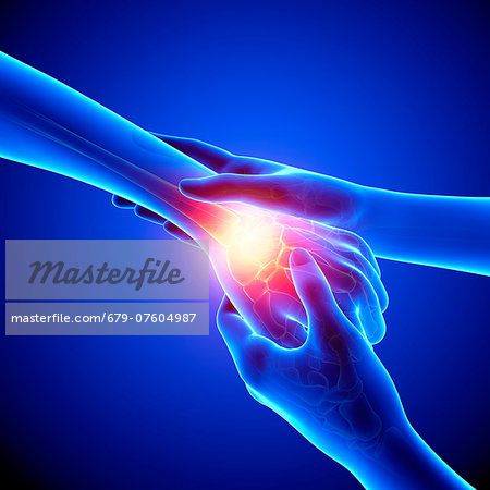 Wrist pain, computer artwork. Stock Photo - Premium Royalty-Free, Image code: 679-07604987