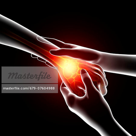 Wrist pain, computer artwork. Stock Photo - Premium Royalty-Free, Image code: 679-07604988
