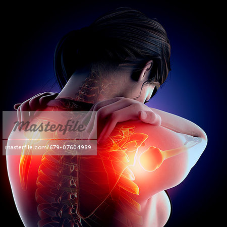 Shoulder pain, computer artwork. Stock Photo - Premium Royalty-Free, Image code: 679-07604989