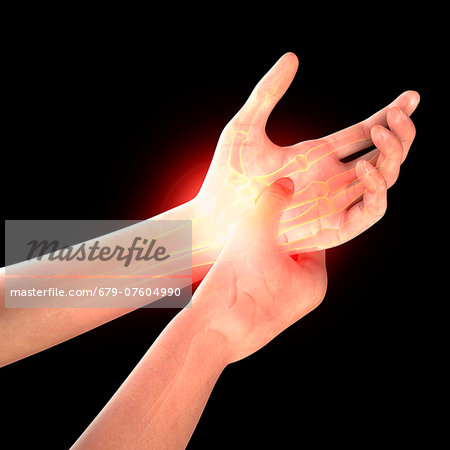 Wrist pain, computer artwork. Stock Photo - Premium Royalty-Free, Image code: 679-07604990