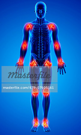 Joint pain, computer artwork. Stock Photo - Premium Royalty-Free, Image code: 679-07605161