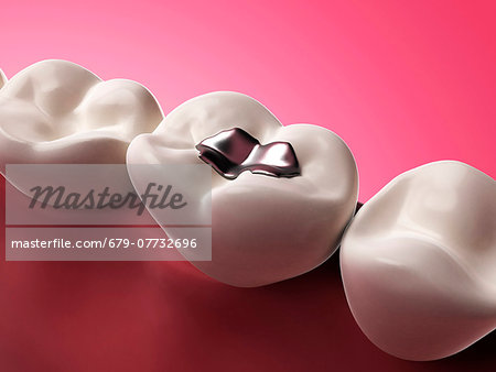 Human tooth with an amalgam filling, computer artwork. Stock Photo - Premium Royalty-Free, Image code: 679-07732696
