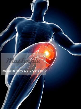 Human anatomy of a runner's knee joint, computer artwork. Stock Photo - Premium Royalty-Free, Image code: 679-07764636