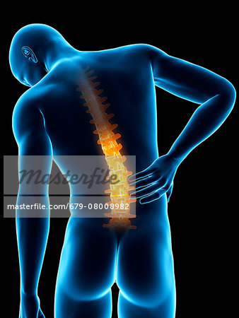 Human back pain, computer illustration. Stock Photo - Premium Royalty-Free, Image code: 679-08008982