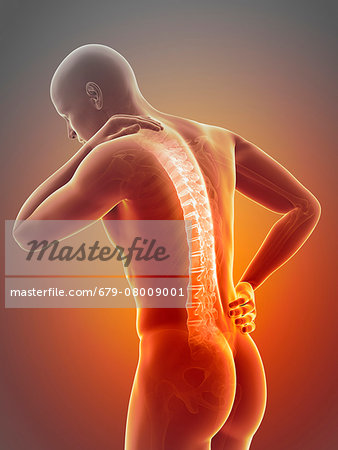 Human back pain, computer illustration. Stock Photo - Premium Royalty-Free, Image code: 679-08009001