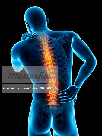 Human back pain, computer illustration. Stock Photo - Premium Royalty-Free, Image code: 679-08009007