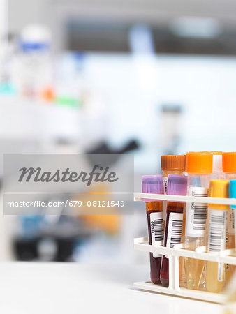 Medical testing of various human samples including blood, urine and chemical in lab. Stock Photo - Premium Royalty-Free, Image code: 679-08121549