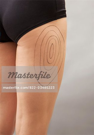 Close up of a woman's thigh with liposuction markings Stock Photo - Rights-Managed, Image code: 822-03485223