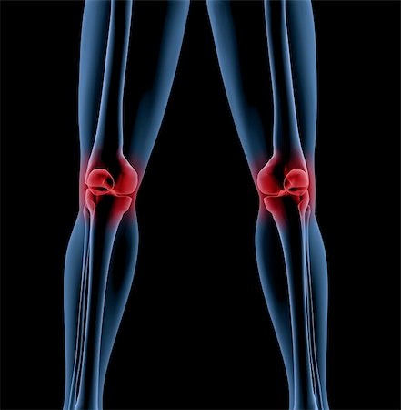 Medical skeleton with a close up of the legs showing pain in the knees Stock Photo - Budget Royalty-Free & Subscription, Code: 400-04276272