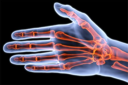 human palm under X-rays. bones are highlighted in red. Stock Photo - Budget Royalty-Free & Subscription, Code: 400-04272891