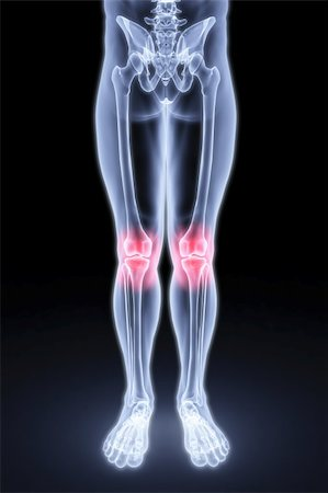male feet under the X-rays. knee joints are highlighted in red. Stock Photo - Budget Royalty-Free & Subscription, Code: 400-04272916