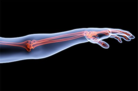 human hand under X-rays. bones are highlighted in red. Stock Photo - Budget Royalty-Free & Subscription, Code: 400-04272946