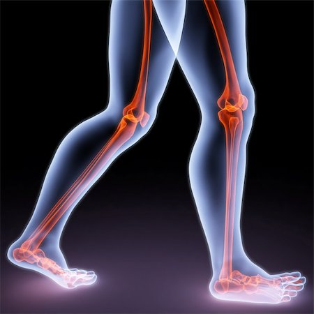 feet walking person under X-rays. bones are highlighted in red. Stock Photo - Budget Royalty-Free & Subscription, Code: 400-04272947