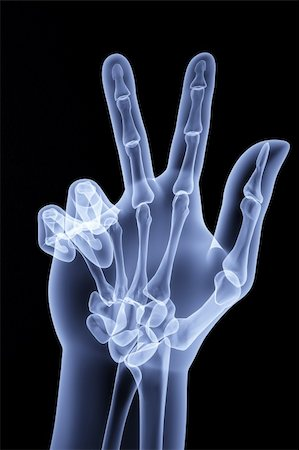 the human hand shows the number of fingers under the X-rays Stock Photo - Budget Royalty-Free & Subscription, Code: 400-04272955