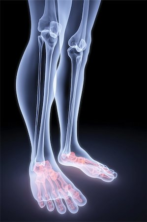 male feet under the X-rays. bones are highlighted in red. Stock Photo - Budget Royalty-Free & Subscription, Code: 400-04291746