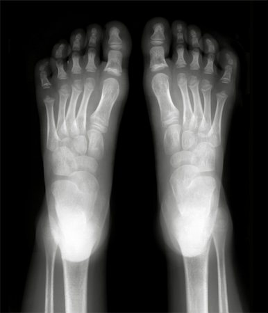 Foot fingers exposed on x-ray black and white film Stock Photo - Budget Royalty-Free & Subscription, Code: 400-04322789