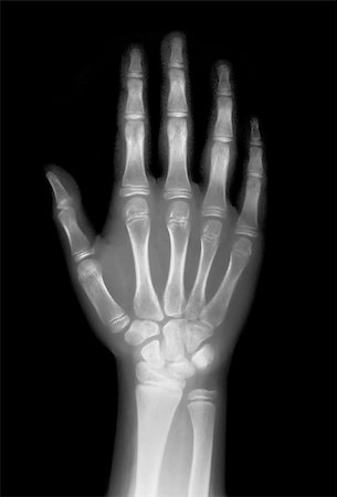 hand on x-ray negative film Stock Photo - Budget Royalty-Free & Subscription, Code: 400-04322790