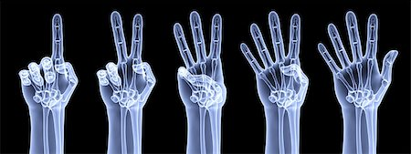 the human hand shows the number of fingers under the X-rays Stock Photo - Budget Royalty-Free & Subscription, Code: 400-04423060