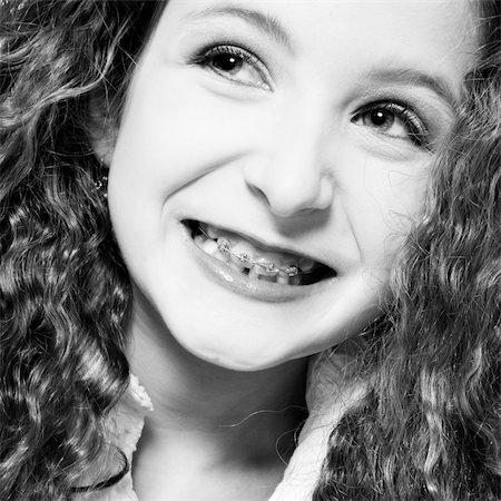 Studio portrait of a young girl with a wide smile and braces Stock Photo - Budget Royalty-Free & Subscription, Code: 400-04486494