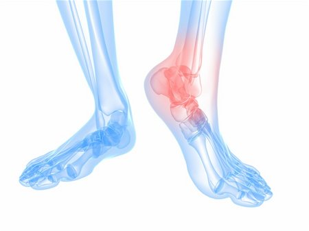 3d rendered illustration of a skeletal foot with highlighted ankle Stock Photo - Budget Royalty-Free & Subscription, Code: 400-04693071