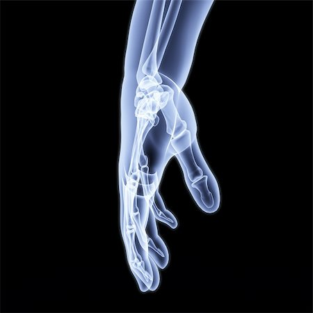 human hand under X-rays. 3d image. Stock Photo - Budget Royalty-Free & Subscription, Code: 400-04784365